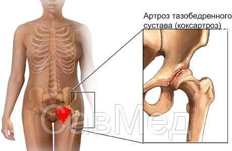 Болезни суставов клиники на украине санаторно-курортное лечение заболеваний суставов противопоказания