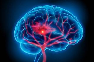 Стимуляция умственной деятельности