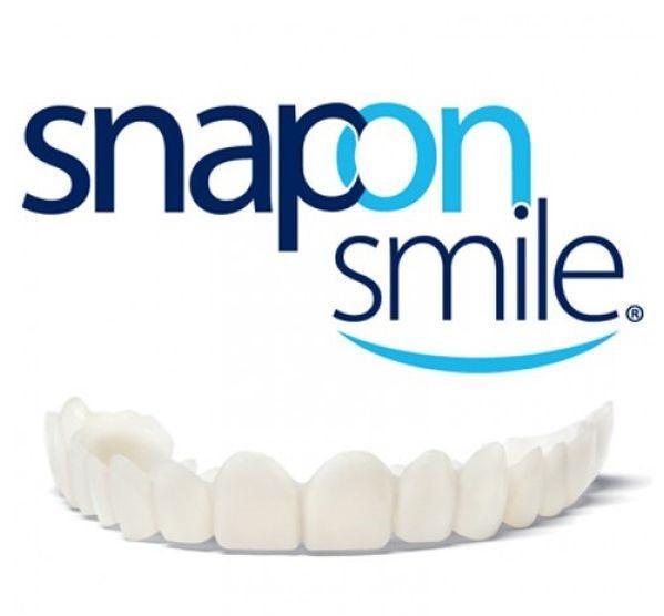 Съемные виниры / Знімні вініри на зуби  | виниры для зубов | накладные зубы Veneers Snap-on smile, фото 1