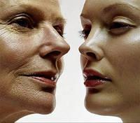 Лазерное удаление морщин, фотоомоложение кожи лица, шеи, декольте