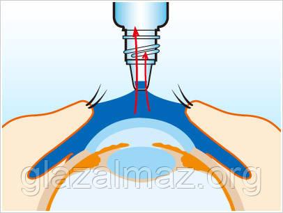 Інструкція застосування очних крапель