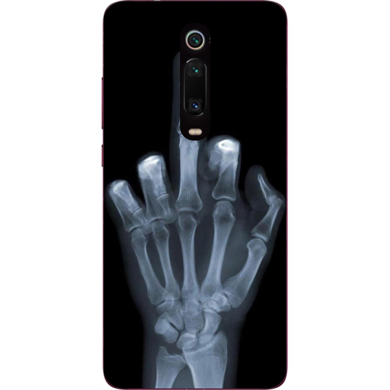 Чохол силіконовий для Xiaomi Mi 9t / K20 / Mi 9t Pro / K20 Pro з картинкою Рентген