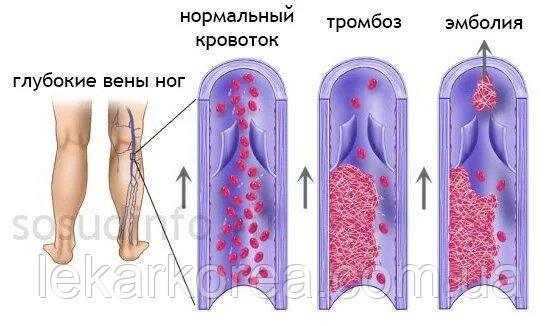 лечить тромбоз лечение таблетки в аптеке киева , тромбофлебит препараты для лечения, растворить тромбы в венах, реабилитация после тромбоза инсульта