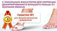 Фиксаторы для лечения косточки на ноге