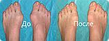 Valgus Plus от косточки на ноге, фото 5