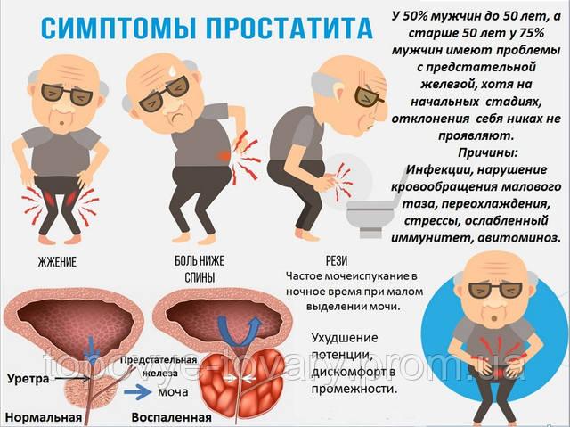 простатит и аллергия