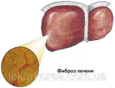 лечить фиброз печени натуральным препаратом