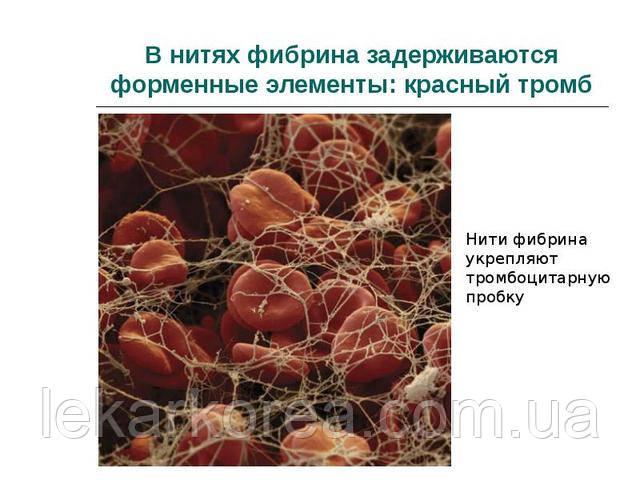 """<script type='application/ld+json'>  {   """"@type"""": """"product"""",   """"brand"""": """"натуральные препараты из Северной Кореи"""",   """"name"""": """"Люмброкиназа Lumbrokinase"""",   """"image"""": """"https://lekarkorea.com.ua/p977816645-lyumbrokinaza-sredstvo-rastvoryayuschee.html"""",   """"description"""": """"люмброкиназа растворит сложные тромбы вылечит тромбофлебит препараты из северной кореи купить не дорого в россии украине казахстане узбекистане для разжижения крови кроворазжижающий натуральный препарат средство народной медицины лечить тромбоз препаратом из китая японии индии лекарство из дождевых червей купить оптом и в розницу капсулы таблетки из кндр """",   """"aggregateRating"""": {     """"@type"""": """"aggregateRating"""",     """"ratingValue"""": """"100%"""",     """"reviewCount"""": """"99""""   } }  </script>"""