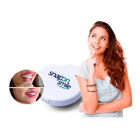 Съемные виниры для зубов Snap On Smile, фото 2