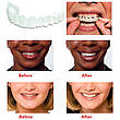 Съемные виниры для зубов Snap On Smile, фото 4