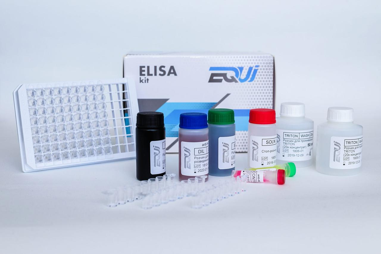EQUI Epstein-Barr virus (VCA) IgG