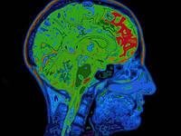 Найден белок, связанный с ухудшением памяти.