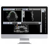 Цифровий панорамний рентген X-VIEW 3D (Trident, Італія), фото 7