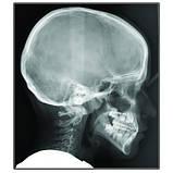 Цифровий панорамний рентген X-VIEW 3D (Trident, Італія), фото 6
