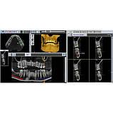 Цифровий панорамний рентген X-VIEW 3D (Trident, Італія), фото 8