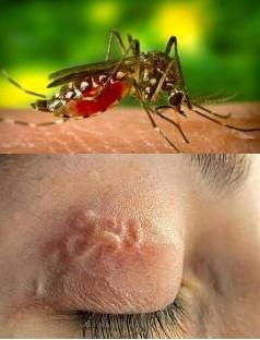 Укус комара - какие последствия могут быть?