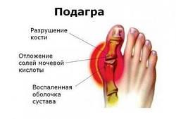 Подагра, причины заболевания, предупреждение и профилактика.