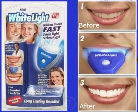 Система для отбеливания зубов White Light,Вайт Лайтт