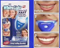 Система для отбеливания зубов White Light,Вайт Лайтт, фото 1