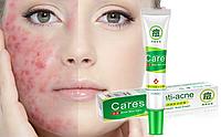 Крем для жирной и проблемной кожи Rorec Anti-Acne, 30 г