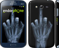 "Чехол на Samsung Galaxy Grand Duos I9082 Рука через рентген ""1007c-66"""