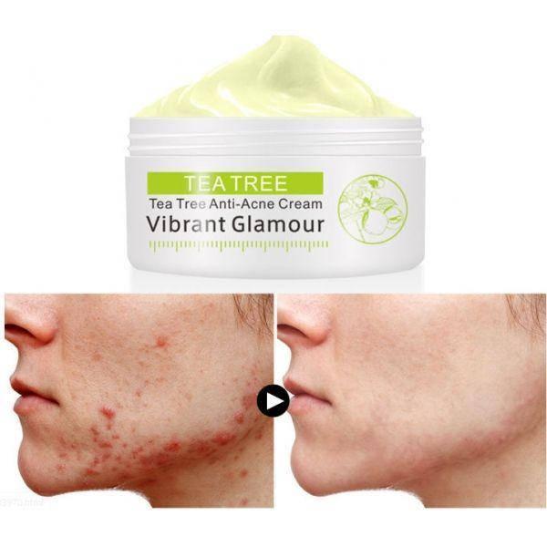 Противовоспалительный крем для лица Vibrant Glamour Tea Tree Anti Acne Face Cream  30 г, фото 2