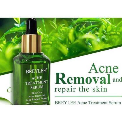 Эссенция для лица против акне и прыщей BREYLEE Acne Treatment Serum Facial Essence Anti Acne экстрактом листьев камелии китайской 15 мл, фото 2