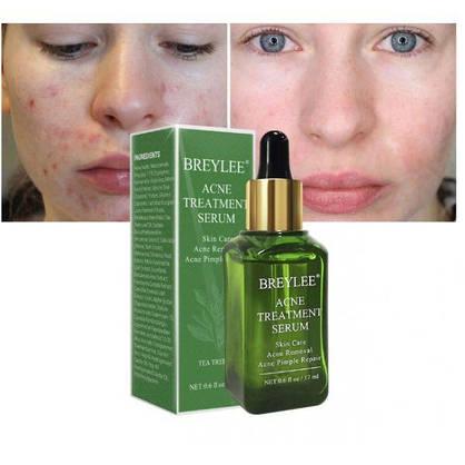 Эссенция для лица против акне и прыщей BREYLEE Acne Treatment Serum Facial Essence Anti Acne экстрактом листьев камелии китайской 15 мл, фото 3