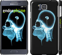 "Чехол на Samsung Galaxy Alpha G850F Гомер. Томография ""652c-65"""