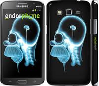 "Чехол на Samsung Galaxy Grand 2 G7102 Гомер. Томография ""652c-41"""