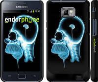 "Чехол на Samsung Galaxy S2 i9100 Гомер. Томография ""652c-14"""