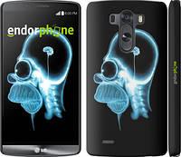 "Чехол на LG G3 dual D856 Гомер. Томография ""652c-56"""