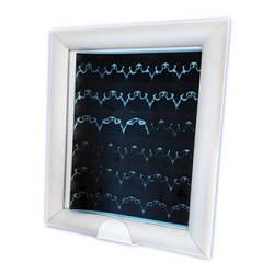 Негатоскоп светодиодный медицинский НМ-1LED (однокадровый)
