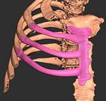 Успішні операції з імплантації 3D друкованих ребер.