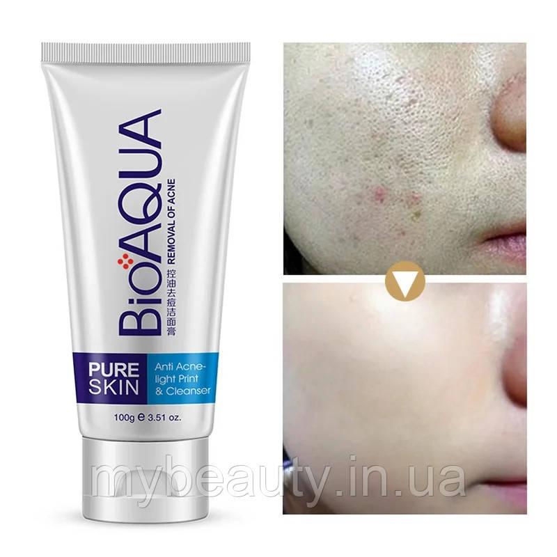 Пенка для умывания анти акне Bioaqua Pure Skin Anti Acne-Light Print & Cleanser (100г)
