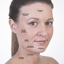 Мезороллер для лица MT 540 игл Skin Roller System длина иглы 0.75 мм Черный (nri-3002), фото 3