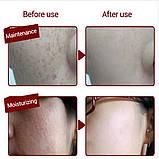 Сироватка з екстрактом граната Images Pomegranate Fresh Skin Natural (15мл), фото 2