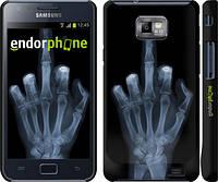 """Чехол на Samsung Galaxy S2 Plus i9105 Рука через рентген """"1007c-71"""""""
