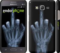 "Чехол на Samsung Galaxy Grand Prime G530H Рука через рентген ""1007c-74"""