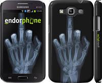 """Чехол на Samsung Galaxy Win i8552 Рука через рентген """"1007c-51"""""""