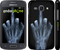 "Чехол на Samsung Galaxy Ace 3 Duos s7272 Рука через рентген ""1007c-33"""