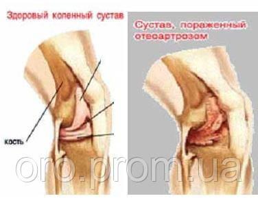 Использование биологически активных добавок (БАД) в терапии остеоартроза