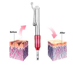 Гиалуроновая ручка ( Hyaluronic pen) красная, фото 2