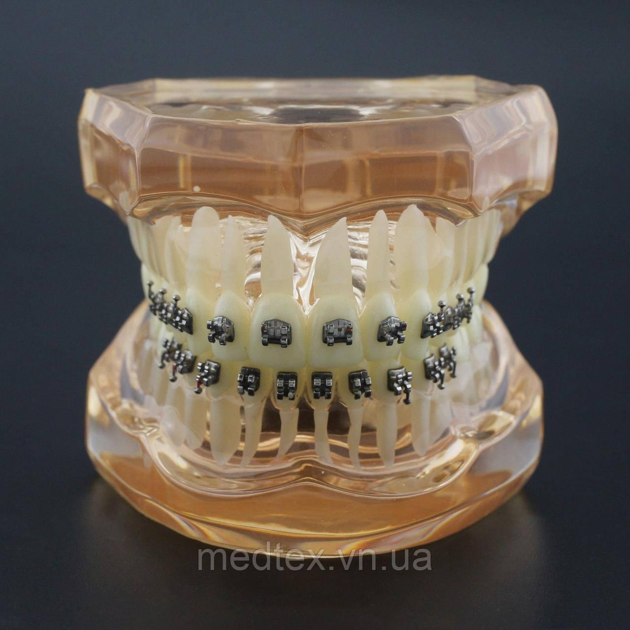 Демонстрационная модель брекетов  для ортодонтов