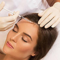 Лечение выпадения волос, мезотерапия головы. Косметолог Хмельницкий