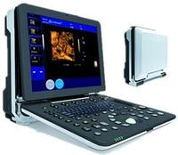 УЗД Dawei DW-P6 Ультразвукова 4D допплерівська діагностична система професійного класу
