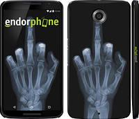 "Чехол на Motorola Nexus 6 Рука через рентген ""1007c-67"""