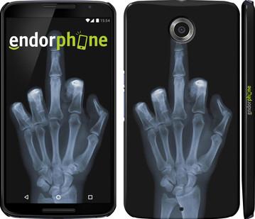 Чехол на Motorola Nexus 6 Рука через рентген