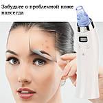 Вакуумный очиститель пор лица Doc-team Spa прибор для чистки пор от черных точек, акне,  угрей с 4 насадками, фото 8