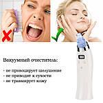 Вакуумный очиститель пор лица Doc-team Spa прибор для чистки пор от черных точек, акне,  угрей с 4 насадками, фото 3